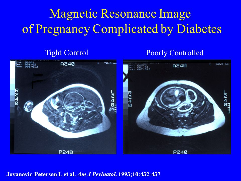 Magnetic Resonance Image of Pregnancy Complicated by Diabetes Tight Control Poorly Controlled Jovanovic-Peterson L et al.
