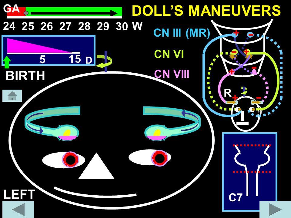 LEFT + + + + R C7 CN III (MR) CN VI CN VIII 5 15 D DOLL'S MANEUVERS BIRTH 2526272829 30 W 24 GA