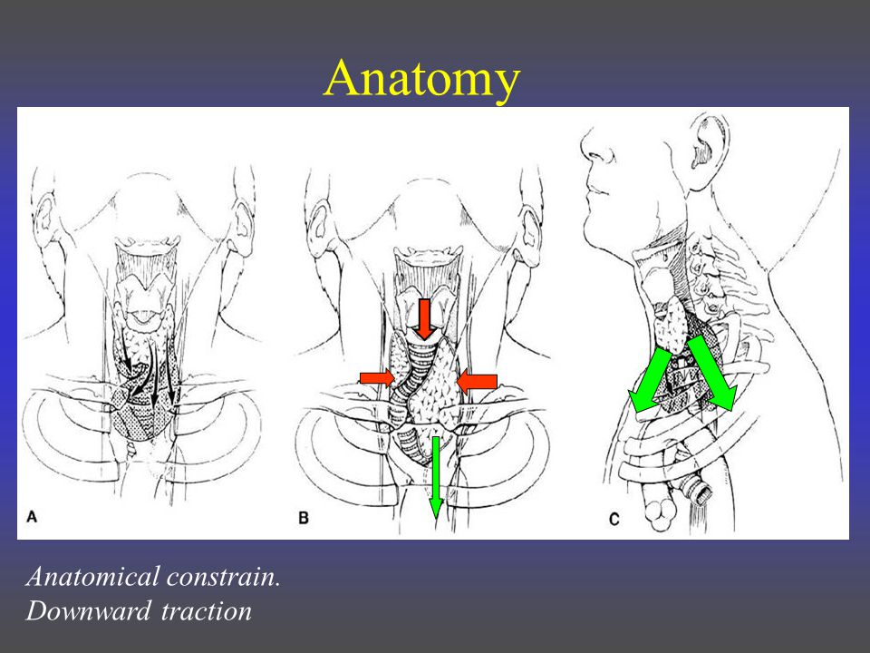 Anatomical constrain. Downward traction Anatomy