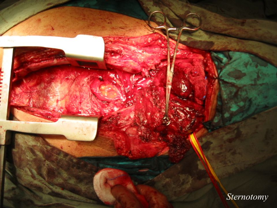 Sternotomy