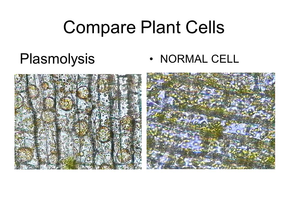 Compare Plant Cells NORMAL CELL Plasmolysis