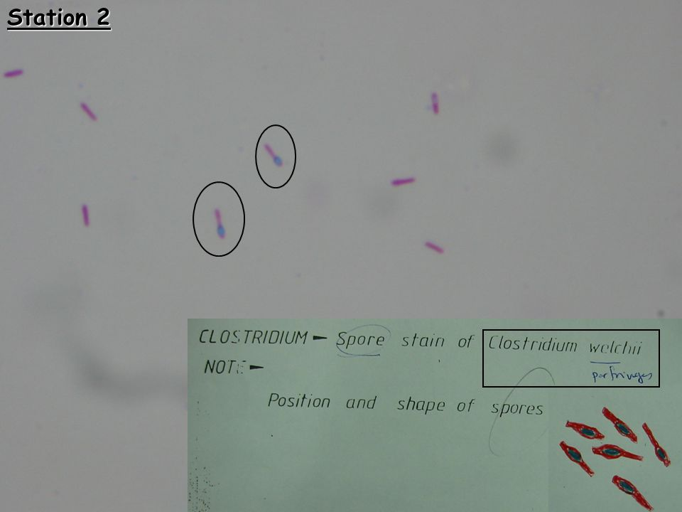 Station 11 Clostridia perfringens Infection:- 1-Gas gangrene  amputation of limbs 2- Food poisoning meat, stew & soup  vomiting and diarrhea Treatment:- Cleaning the wound, putting the patient in hyperbaric oxygen chamber and give Penicillin in high doses Clostridia tetani Infection:- Tetanus, associated with cutting the umblical cord with unsertile blades.