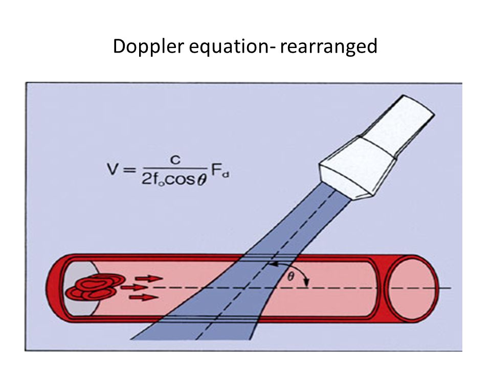 Factors affecting doppler equation Estimation of blood flow velocity is dependent on incident angle between ultrasound beam and blood flow When RBCs parallel-maximum velocity When RBCs perpendicular-no doppler shift When angle between ultrasound beam and blood flow is less than or equal 20 degree,cosine close to 1 and percent error is less than or equal to 7%