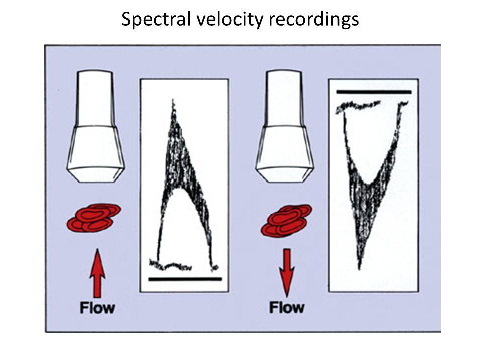 Spectral velocity recordings
