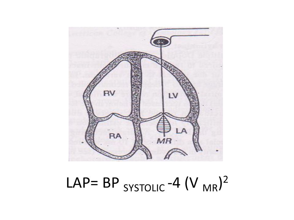 LVEDP =BP DIASTOLIC - 4 (V AR-ED ) 2
