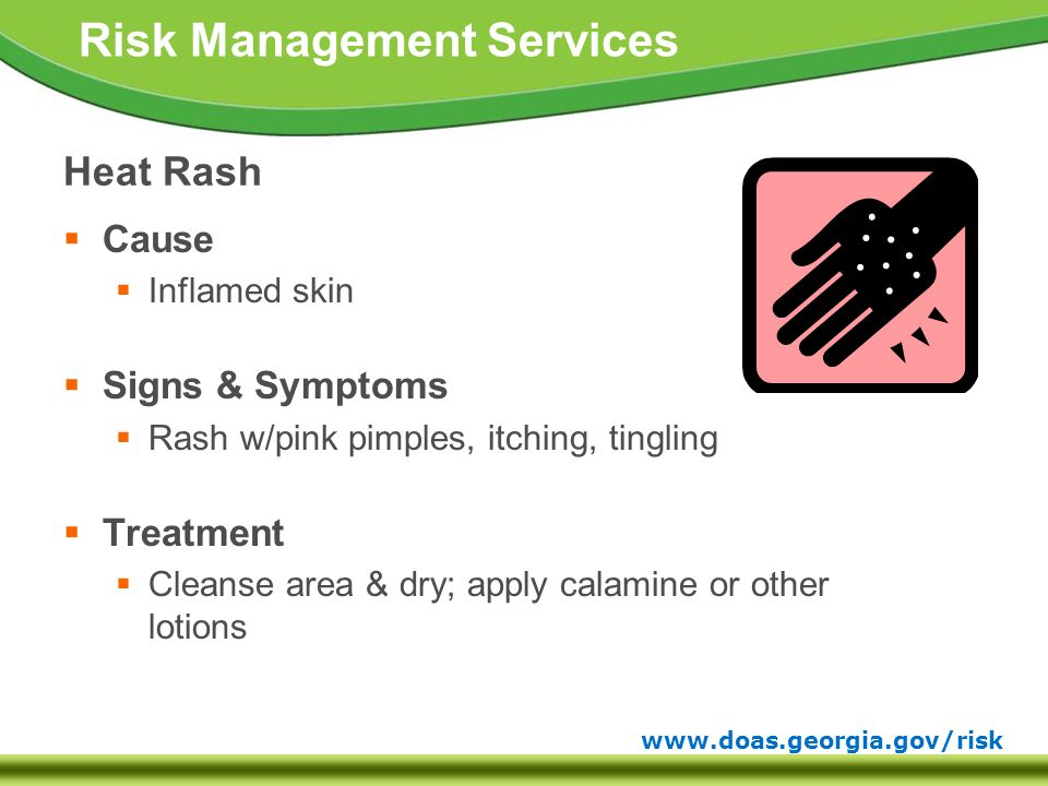 www.doas.georgia.gov/risk Risk Management Services Heat Rash  Cause  Inflamed skin  Signs & Symptoms  Rash w/pink pimples, itching, tingling  Treatment  Cleanse area & dry; apply calamine or other lotions