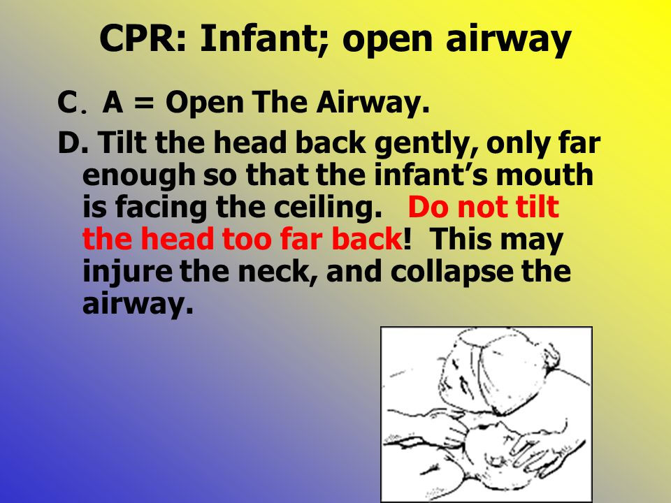 CPR: Infant; open airway C. A = Open The Airway. D. Tilt the head back gently, only far enough so that the infant's mouth is facing the ceiling. Do no