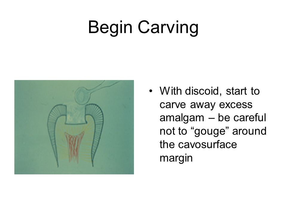 Begin Carving With discoid, start to carve away excess amalgam – be careful not to gouge around the cavosurface margin