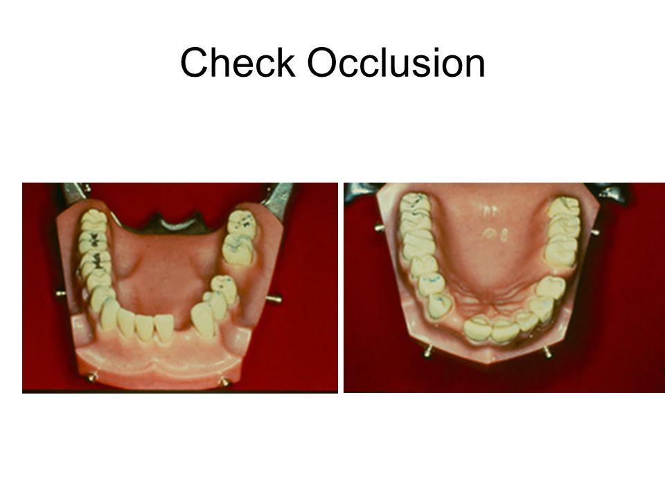 Check Occlusion