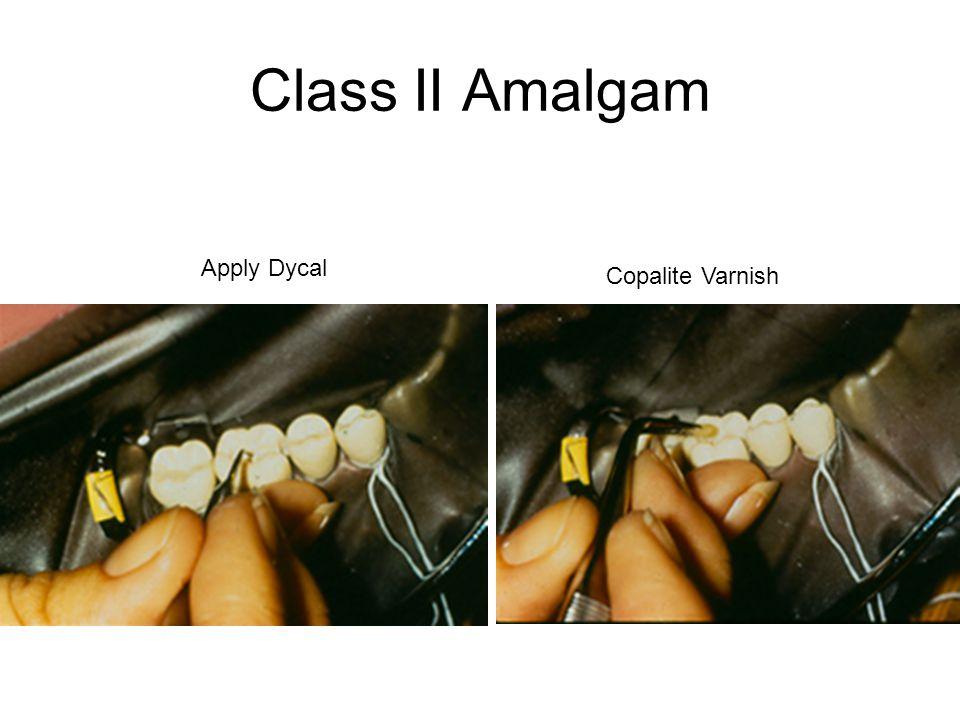 Class II Amalgam Apply Dycal Copalite Varnish