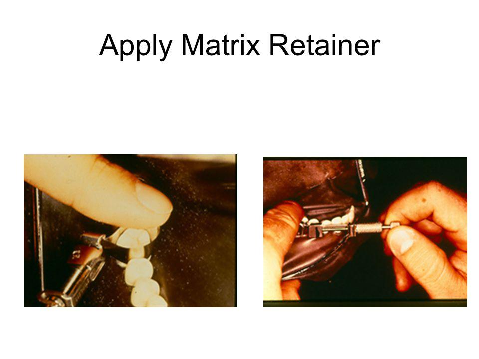Apply Matrix Retainer