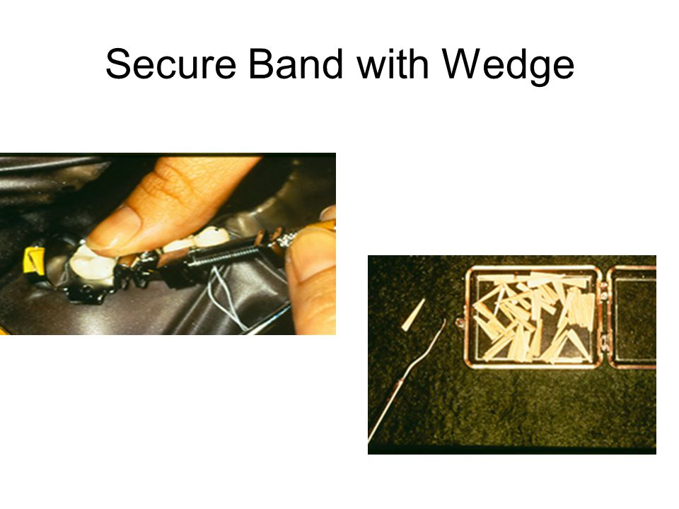 Secure Band with Wedge