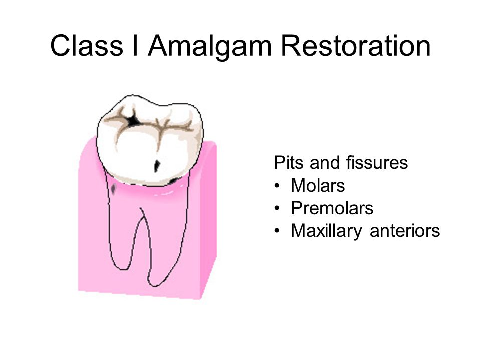 Class I Amalgam Restoration Pits and fissures Molars Premolars Maxillary anteriors
