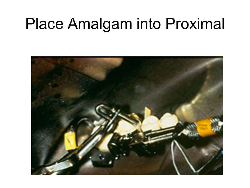 Place Amalgam into Proximal