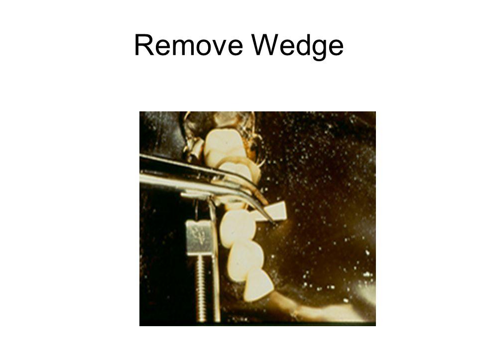 Remove Wedge