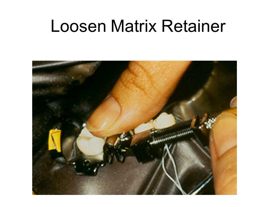 Loosen Matrix Retainer