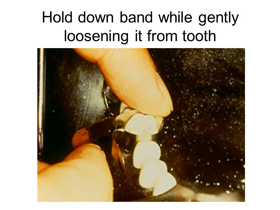 Hold down band while gently loosening it from tooth