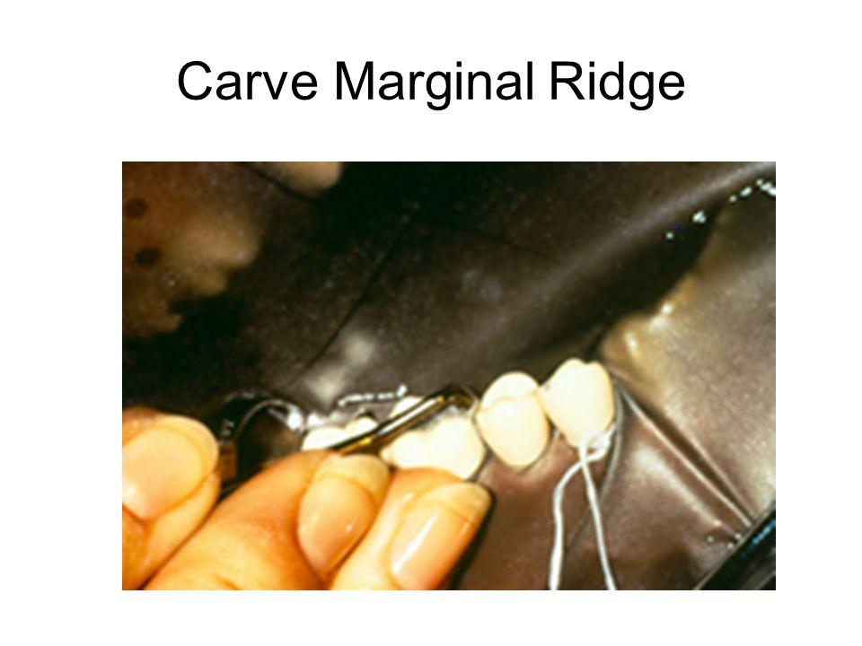 Carve Marginal Ridge