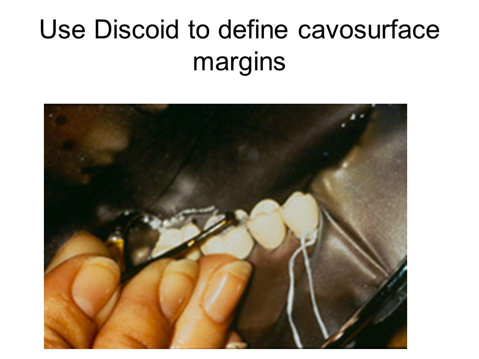 Use Discoid to define cavosurface margins
