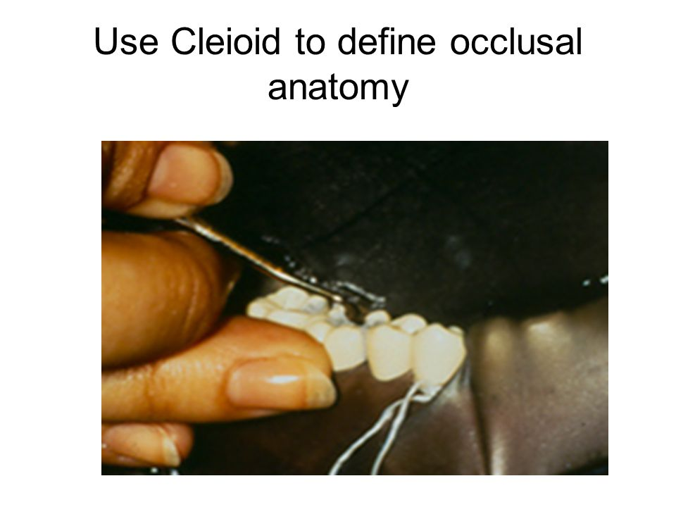 Use Cleioid to define occlusal anatomy