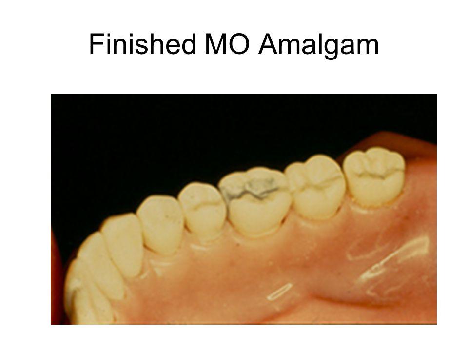Finished MO Amalgam