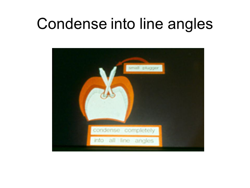 Condense into line angles