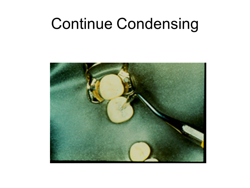 Continue Condensing
