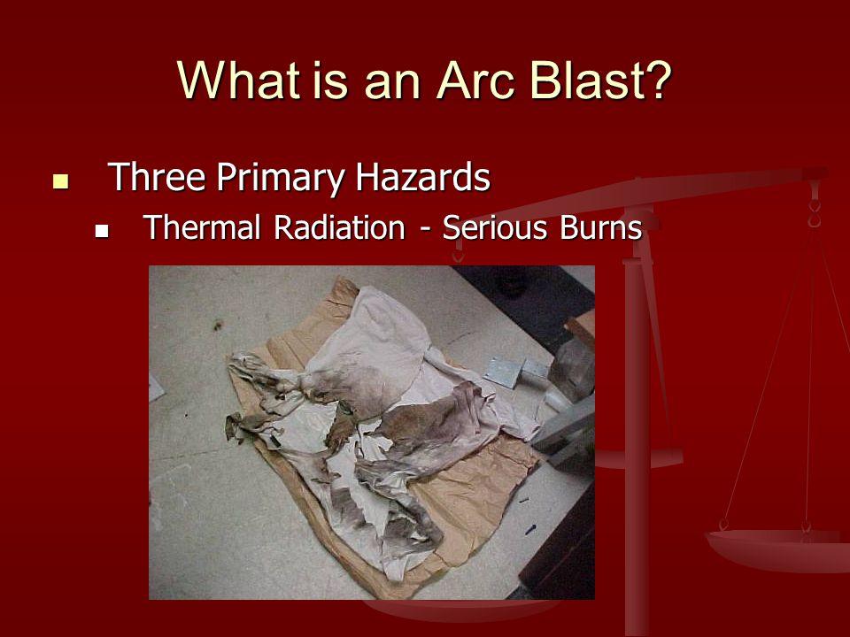What is an Arc Blast? Three Primary Hazards Three Primary Hazards Thermal Radiation - Serious Burns Thermal Radiation - Serious Burns