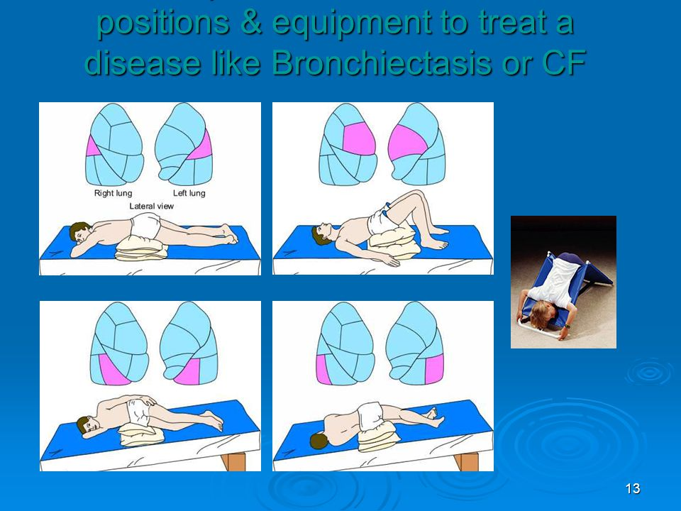 13 Examples of some Chest PT positions & equipment to treat a disease like Bronchiectasis or CF