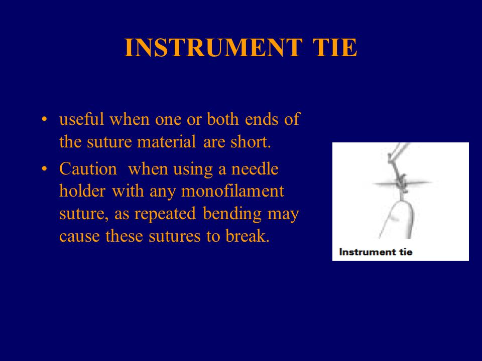INSTRUMENT TIE useful when one or both ends of the suture material are short. Caution when using a needle holder with any monofilament suture, as repe