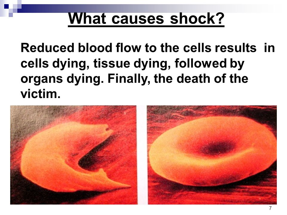 Reduced blood flow to the cells results in cells dying, tissue dying, followed by organs dying.