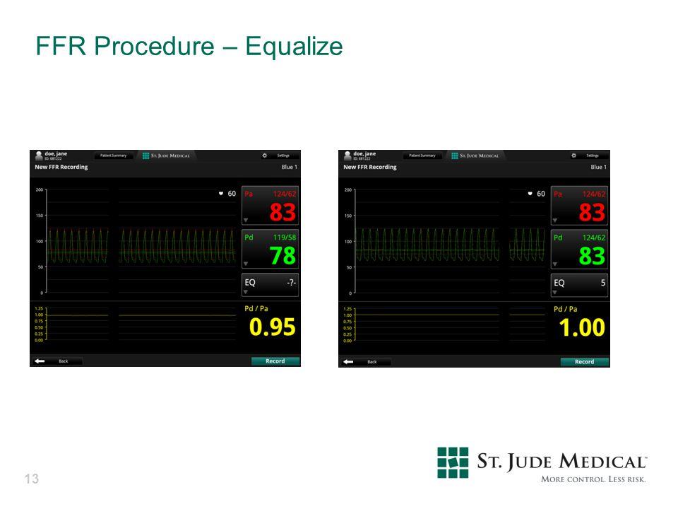 FFR Procedure – Equalize 13
