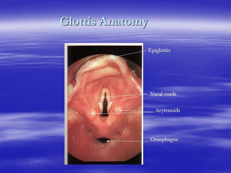 Glottis Anatomy Epiglottis Vocal cords Arytenoids Oesophagus