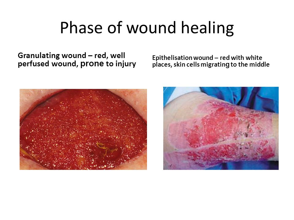 Wound healing Per primam – primary intention (no complications, as expected) Per secundam – secondary intention (complications, wound infection, dehiscence, evisceration)