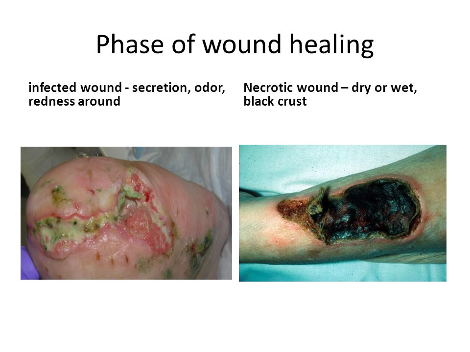 Phase of wound healing infected wound - secretion, odor, redness around Necrotic wound – dry or wet, black crust