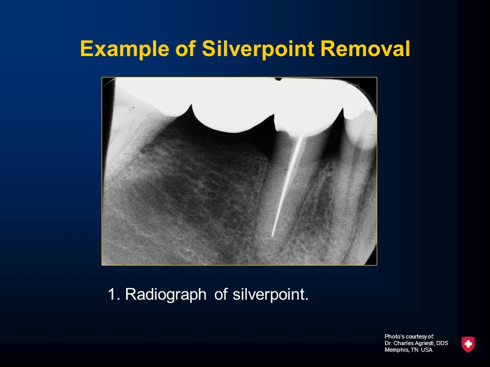 Example of Silverpoint Removal 1. Radiograph of silverpoint.