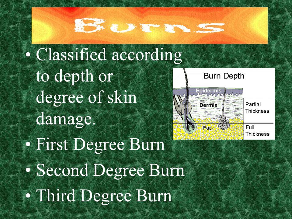 Classified according to depth or degree of skin damage. First Degree Burn Second Degree Burn Third Degree Burn