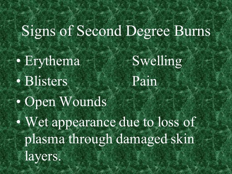 Signs of Second Degree Burns ErythemaSwelling BlistersPain Open Wounds Wet appearance due to loss of plasma through damaged skin layers.