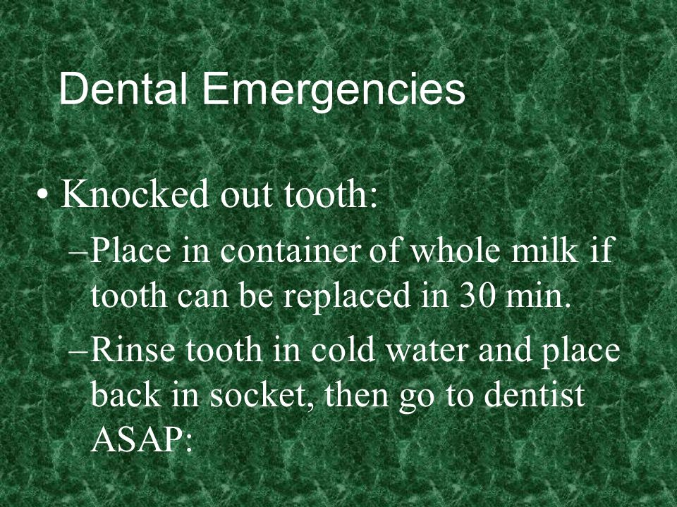 Dental Emergencies Knocked out tooth: –Place in container of whole milk if tooth can be replaced in 30 min.