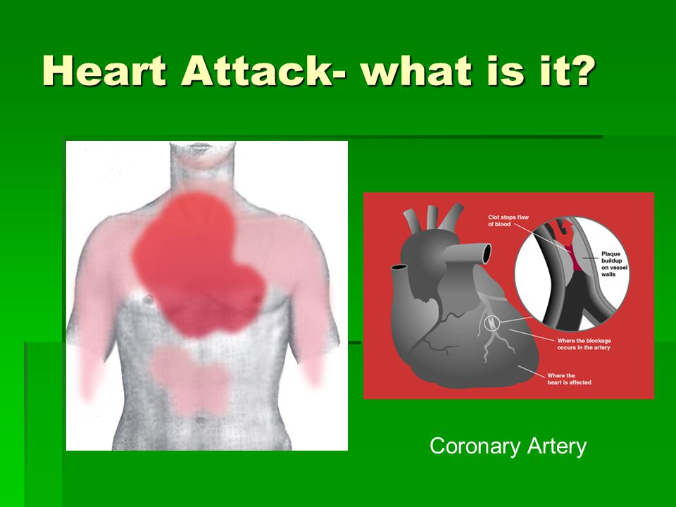 Heart Attack- what is it Coronary Artery
