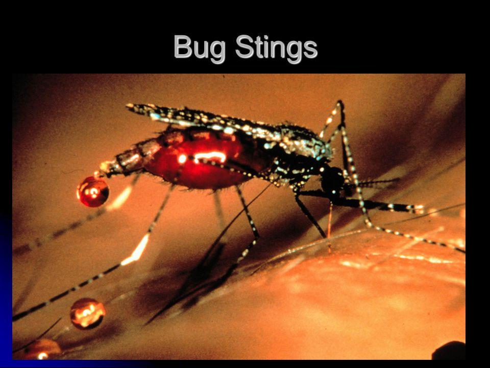 Bug Stings