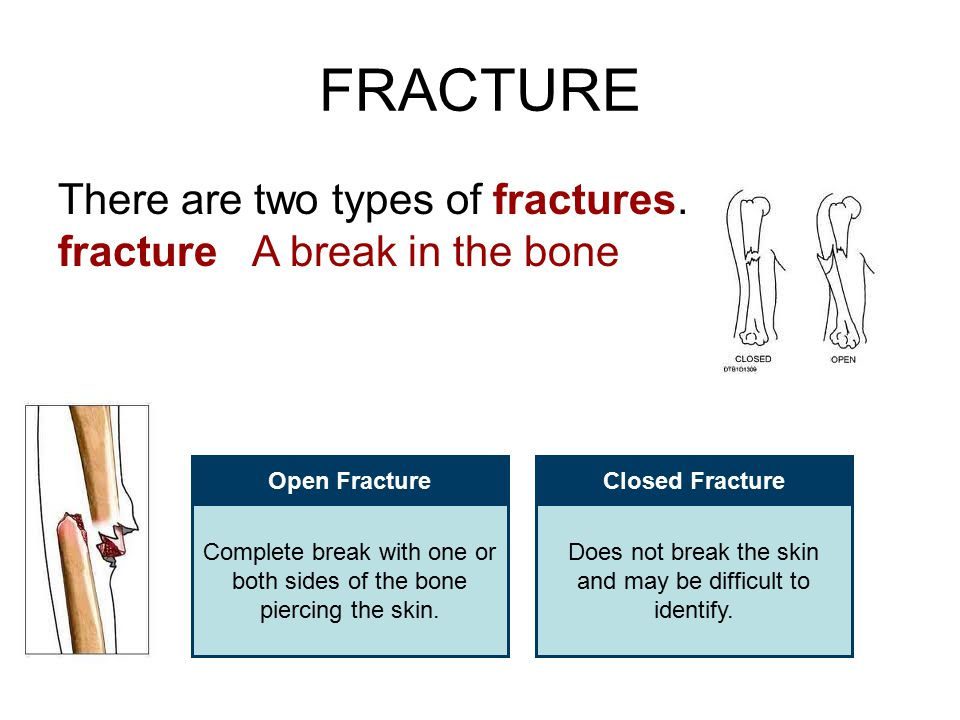 FRACTURE There are two types of fractures. fracture A break in the bone Open FractureClosed Fracture Complete break with one or both sides of the bone