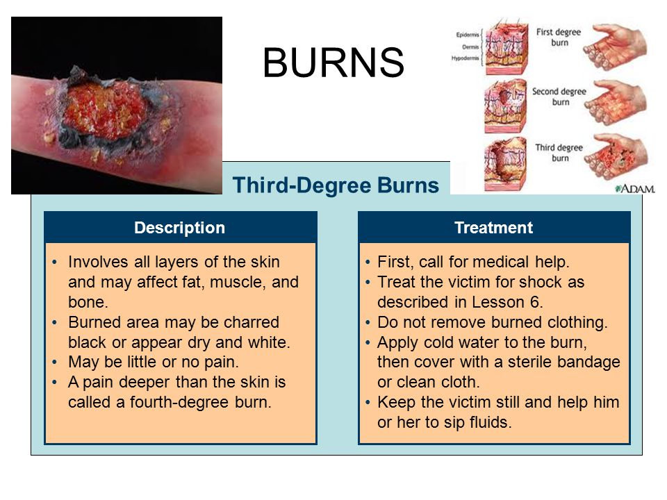 BURNS Third-Degree Burns DescriptionTreatment Involves all layers of the skin and may affect fat, muscle, and bone. Burned area may be charred black o