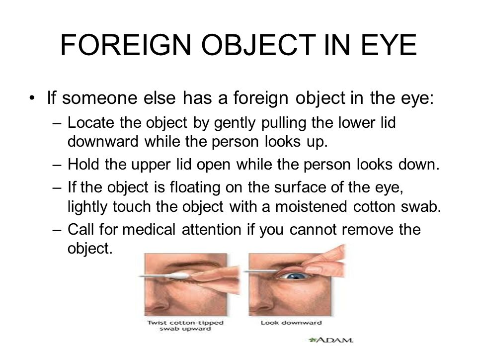 FOREIGN OBJECT IN EYE If someone else has a foreign object in the eye: –Locate the object by gently pulling the lower lid downward while the person lo