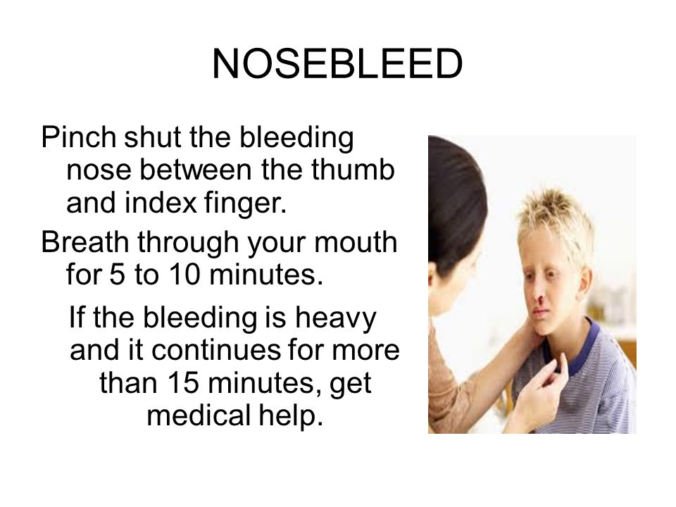 NOSEBLEED Pinch shut the bleeding nose between the thumb and index finger. Breath through your mouth for 5 to 10 minutes. If the bleeding is heavy and