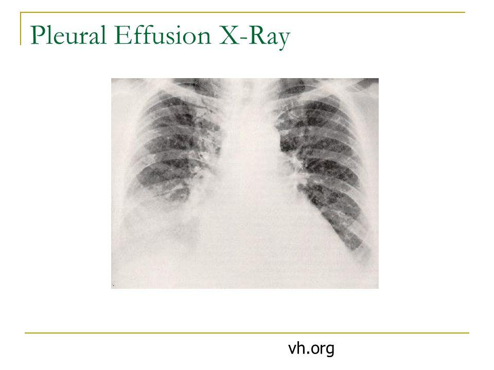 Pleural Effusion X-Ray vh.org