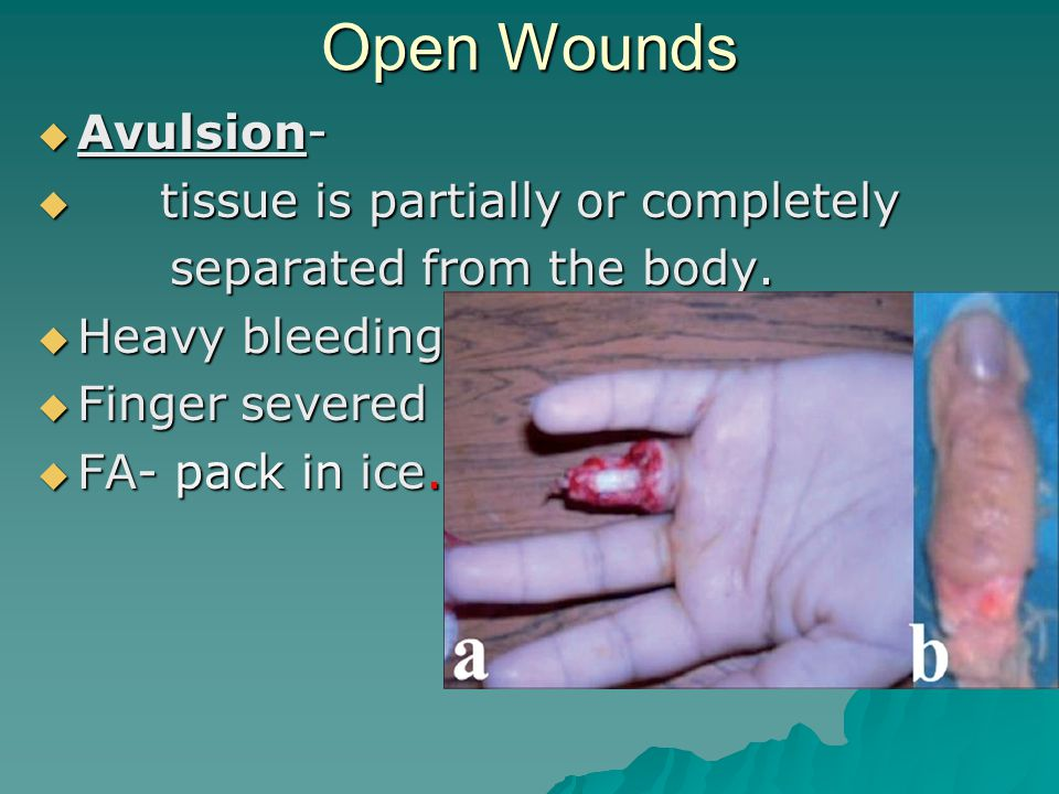 Open Wounds  Puncture –  A small but deep hole caused by a pin, nail, fang, or other object that pierces the skin.