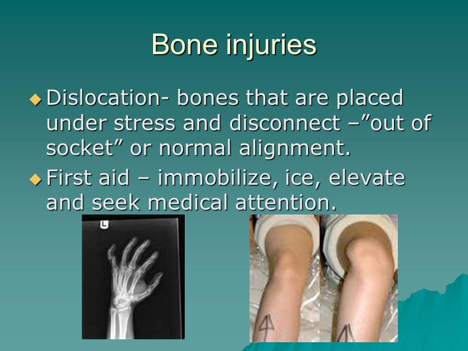 Bone injuries  Fracture – a break in the bone.