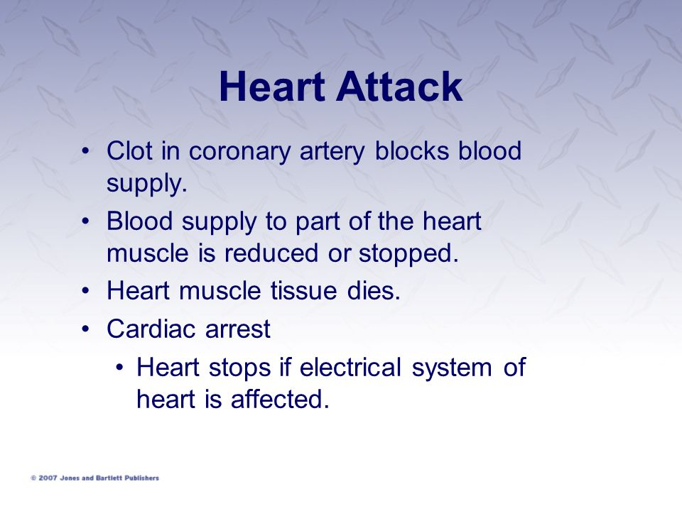 Heart Attack Clot in coronary artery blocks blood supply. Blood supply to part of the heart muscle is reduced or stopped. Heart muscle tissue dies. Ca