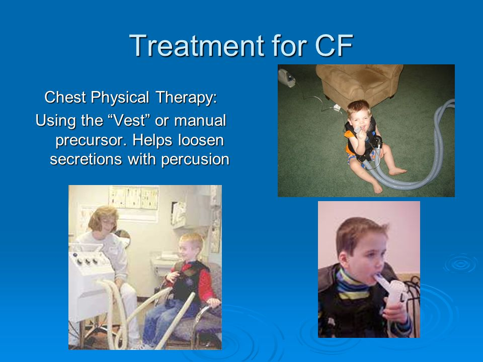 """Treatment for CF Chest Physical Therapy: Using the """"Vest"""" or manual precursor. Helps loosen secretions with percusion"""